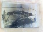 A photograph of a burned victem